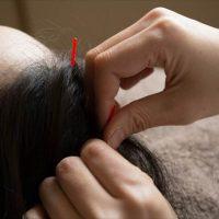 鍼(はり)で元気な髪になる?!はり・きゅうによって健康な髪を作る・メソッド・注意点を徹底解説!